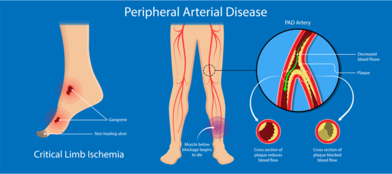 Illustration depicting peripheral arterial disease